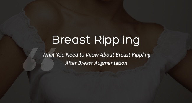 What You Need to Know About Breast Rippling After Breast Augmentation