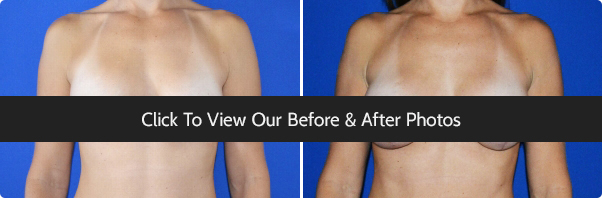Plastic Surgery Before & After Photos