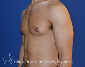 Male Breast Reduction (Gynecomastia)