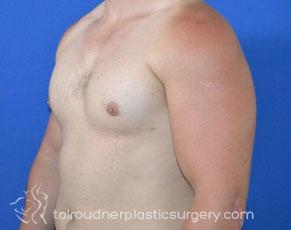 Male Breast Reduction (Gynecomastia)