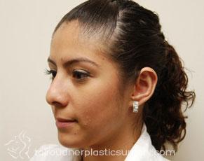 Ear Surgery (Otoplasty)