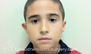 Ear Surgery (Otoplasty)