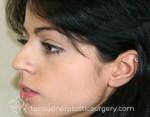 Nose Surgery (Rhinoplasty)