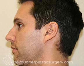Nose Surgery (Rhinoplasty)