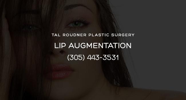 Lip Augmentation Miami