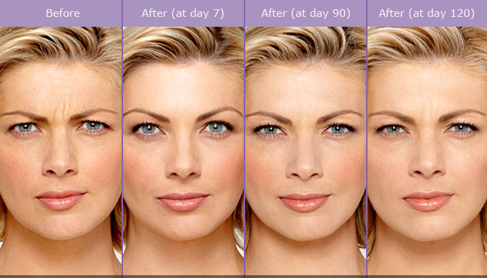 Miami Botox® & Dysport® Before & After Photo Gallery