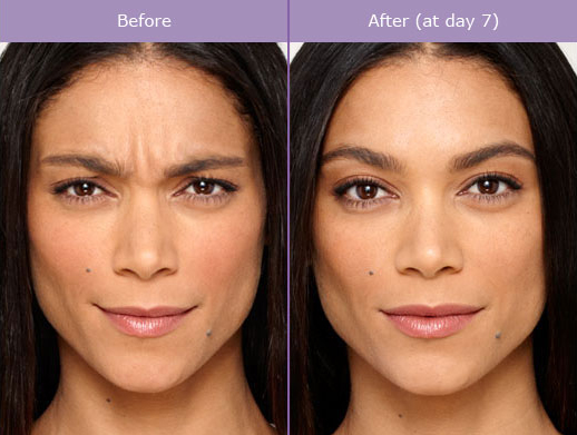 Miami Botox Before & After