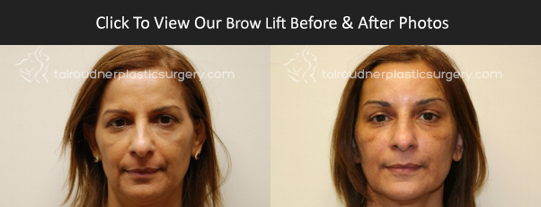 Miami Brow Lift / Forehead Lift Before & After Photo