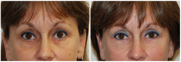 Miami Eyelid Surgery (Blepharoplasty) Before & After Photo Gallery