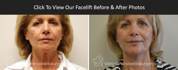 Miami Facelift Before & After Photo Gallery