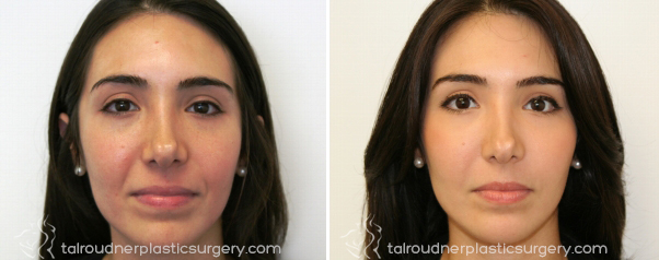 Miami Facial Fillers Before & After Photo Gallery