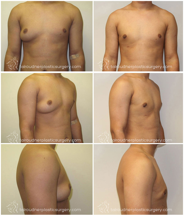 Miami Male Breast Reduction Gynecomastia Before & After Photo