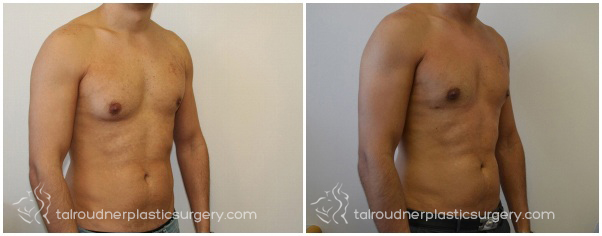 Miami Male Breast Reduction (Gynecomastia) Before & After Photo Gallery