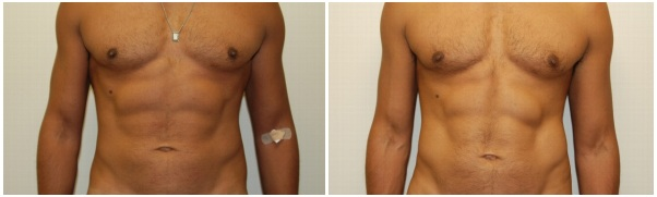 Miami Male Liposuction Before & After Photo Gallery