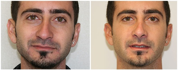 Miami Male Nose Surgery (Rhinoplasty) Before & After Photo Gallery