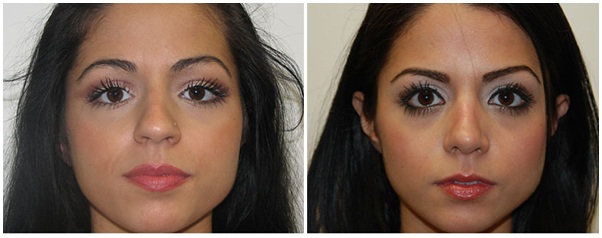 Miami Nose Surgery (Rhinoplasty) Before & After Photo
