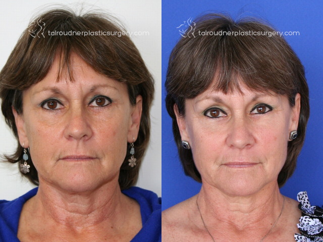 Miami Ultherapy Skin Tightening Before & After Photo Gallery
