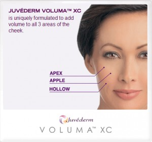 Juvederm Voluma XC: With optimal treatment its results may last up to 2 years.