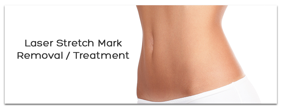 Laser Stretch Mark Removal / Treatment