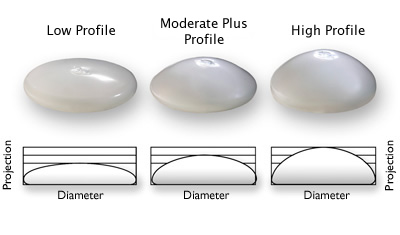 Several Types and Styles of Breast Implants