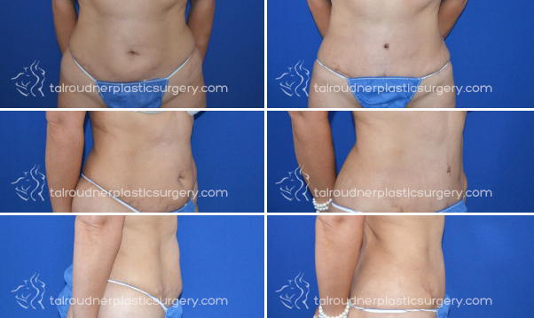 Tummy Tuck Miami: (Abdominoplasty) Tummy Tuck Surgery by  Dr. Tal Roudner