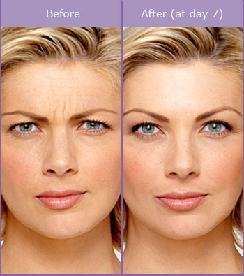 Botox Treatment of face - Before & After Photo