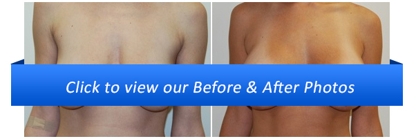 Miami Breast Lift Surgery Before & After Photo Gallery
