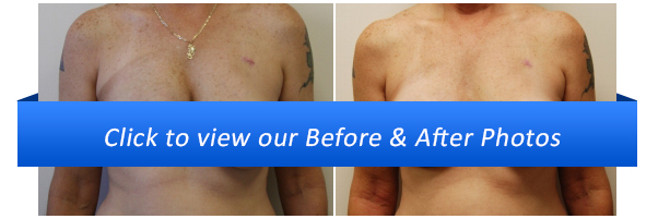 Miami Breast Reconstruction Before & After Photo