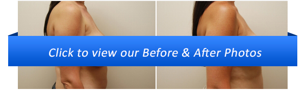 Miami Breast Reduction Before & After Photo Gallery