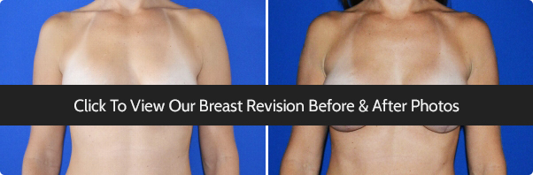 Miami Breast Revision Surgery Before & After Photo Gallery