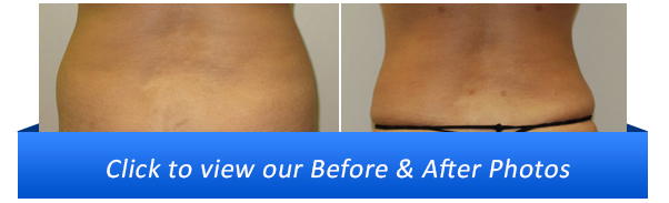 Miami Liposuction Before & After Photo Gallery