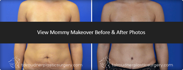Mommy Makeover surgery Before & After Photo