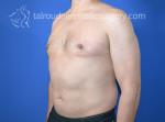 Male Liposuction