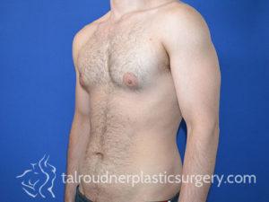 Male Plastic Surgery