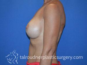 Breast Plastic Surgery