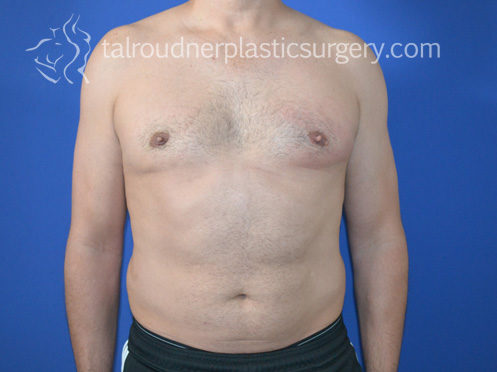 Liposuction for Men | Miami Plastic Surgeon Tal T Roudner MD