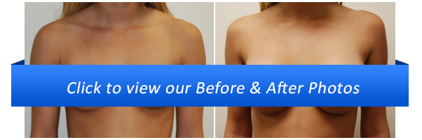 Breast Augmentation Before & After Photo Gallery