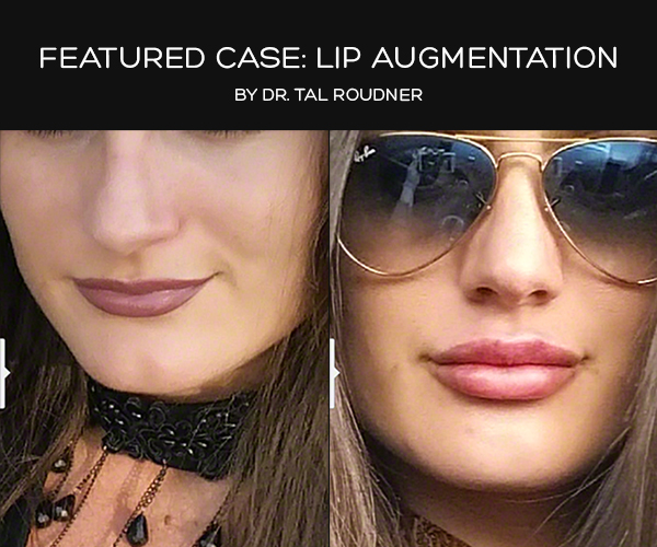 Featured Case: Lip Augmentation - Performed by Dr. Tal Roudner in Miami FL.